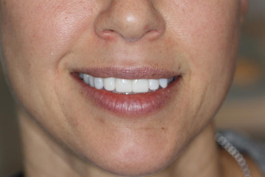 Patient photo - after procedure