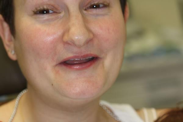 Patient photo - before procedure