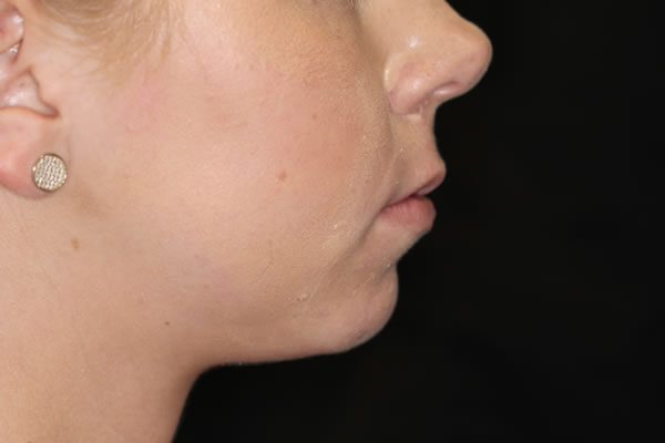 Facial profile after procedure