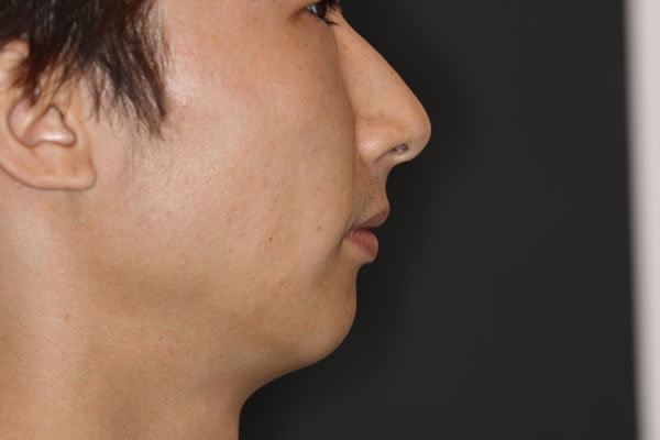 Facial profile before procedure